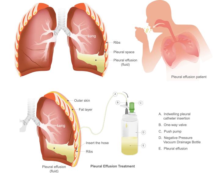 Asbestos-Related Diseases: Asbestosis & Pleural Plaques