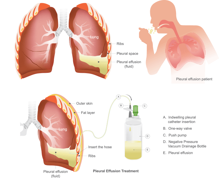 pleural effusion & treatment