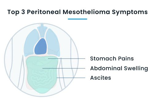 Top 3 peritoneal mesothelioma symptoms