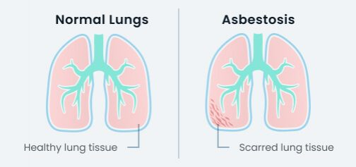 Asbestosis on the lung vs a health lung