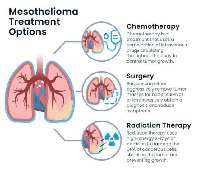 Mesothelioma treatment options