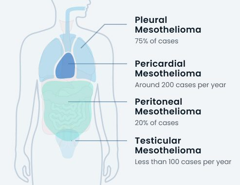 types of mesothelioma by cases