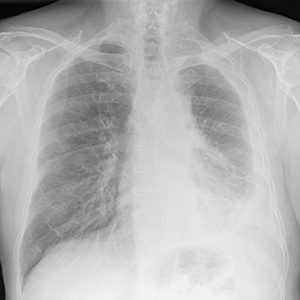 Digital chest x-ray of advanced malignant mesothelioma on left