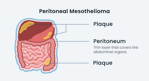 peritoneal mesothelioma diagram