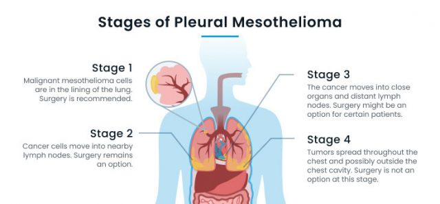The four stages of pleural mesothelioma and their best treatments