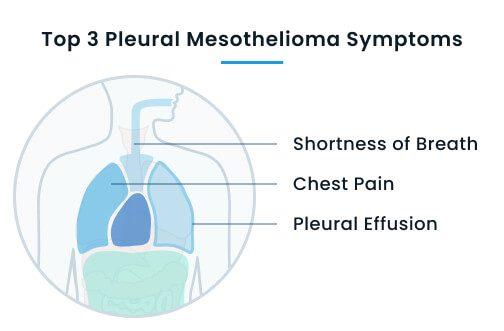 Top 3 pleural mesothelioma symptoms
