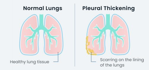 Pleural thickening on the lung vs a healthy lung