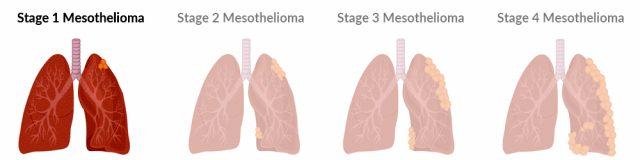 Stage 1 mesothelioma tumor growth