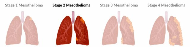 Stage 2 mesothelioma progression