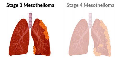 Stage 3 mesothelioma progression