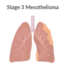 Stage 3 pleural mesothelioma lung