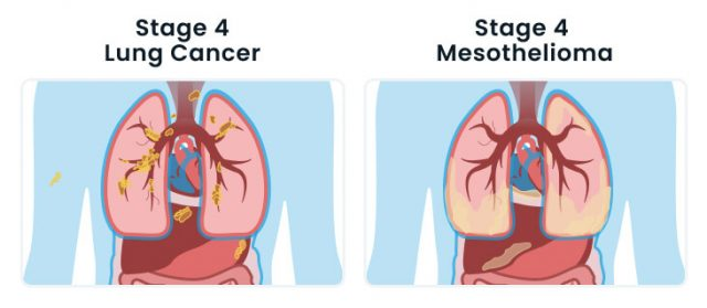 Stage 4 lung cancer vs stage 4 mesothelioma