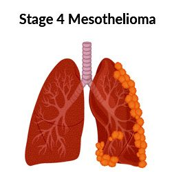 Stage 4 mesothelioma tumors on lung