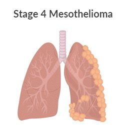 Stage 4 pleural mesothelioma lung