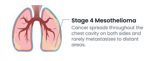 Stage 4 mesothelioma metastasis